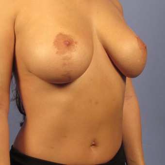 35-44 year old woman treated with Breast Lift with Implants after 2994788