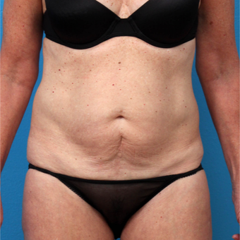 45-54 year old woman treated with Liposuction before 3208639