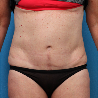 45-54 year old woman treated with Liposuction after 3208639