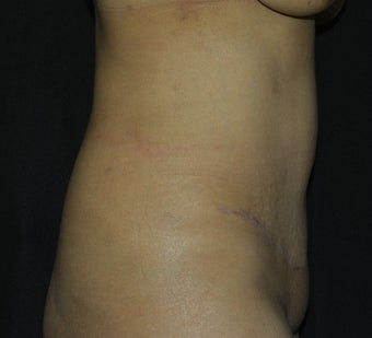 35-44 year old woman treated with Tummy Tuck after 2189770