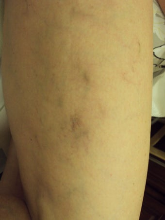 Sclerotherapy 1046955