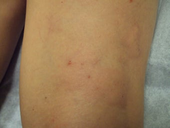 Sclerotherapy after 1046955