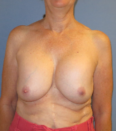 Breast Implant Removal before 3611188