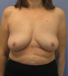 Breast Implant Removal after 3611188