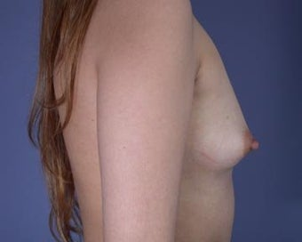 Breast Augmentation before 281385