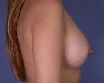 Breast Augmentation after 281385