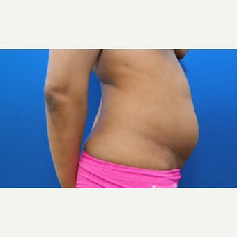 25-34 year old woman treated with Liposuction before 3130259