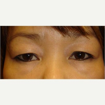 25-34 year old woman treated with Asian Eyelid Surgery