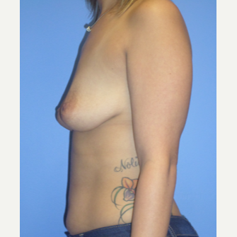 25-34 year old woman treated with Breast Implant Revision before 3370301