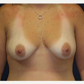 25-34 year old woman treated with Breast Lift with Implants before 3520111