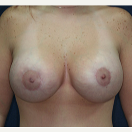 25-34 year old woman treated with Breast Lift with Implants after 3520111