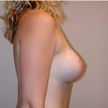 Breast Augmentation after 3680690
