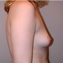 Breast Augmentation before 3680690