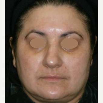 45-54 year old woman treated with Chemical Peel after 3153435