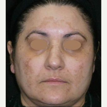 45-54 year old woman treated with Chemical Peel before 3153435