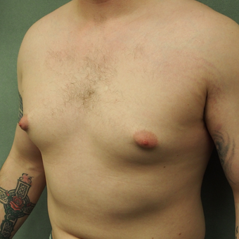18-24 year old Male treated with Male Breast Reduction before 3089156