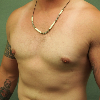 18-24 year old Male treated with Male Breast Reduction after 3089156