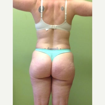 45-54 year old woman treated with Liposuction after 2059749