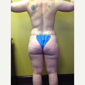 45-54 year old woman treated with Liposuction before 2059749