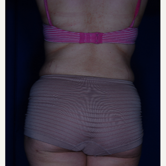 35-44 year old woman treated with Liposuction after 3005371