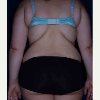 35-44 year old woman treated with Liposuction before 3005371