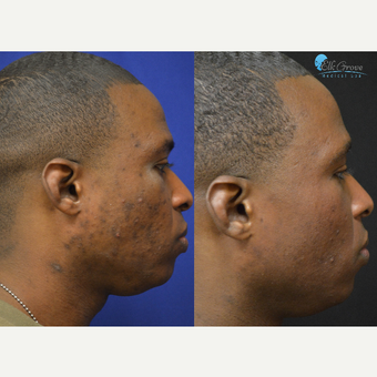 35-44 year old man treated with Halo Laser