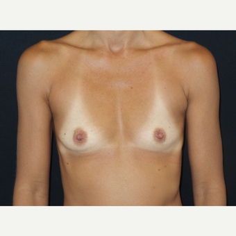 35-44 year old woman treated with Breast Implants before 3651584
