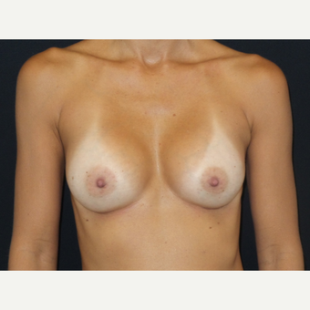 35-44 year old woman treated with Breast Implants after 3651584