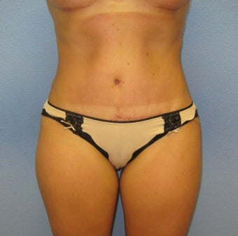 Tummy Tuck after 1535577