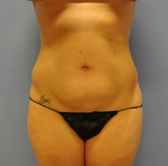 Tummy Tuck before 1535577