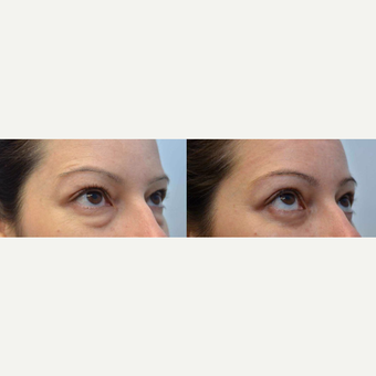 33 year old woman treated with Eyelid Surgery after 3351279