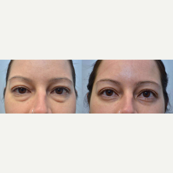 33 year old woman treated with Eyelid Surgery before 3351279