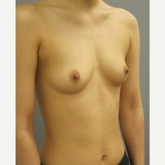 25-34 year old woman treated with Breast Augmentation before 3842596
