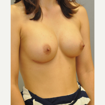 25-34 year old woman treated with Breast Augmentation after 3842596
