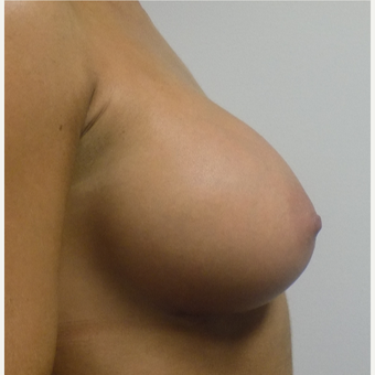 Breast Augmentation after 3035964