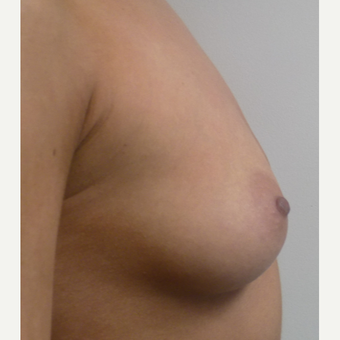 Breast Augmentation before 3035964