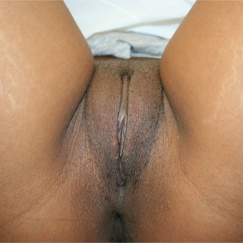 35-44 year old woman treated with Labiaplasty after 3486344