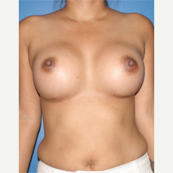 25-34 year old woman treated with Breast Augmentation after 3788718