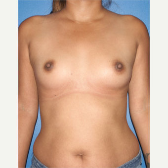 25-34 year old woman treated with Breast Augmentation before 3788718