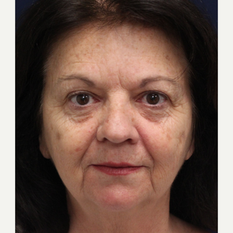 55-64 year old woman treated with Smart Lipo Precision TX to lift and tighten the face before 3243309