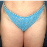 38 year old woman treated with Liposuction after 3721114