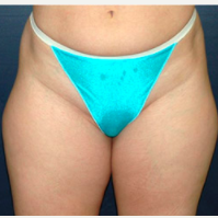 38 year old woman treated with Liposuction before 3721114