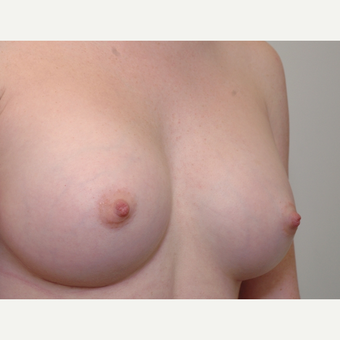 Breast Augmentation after 3108844