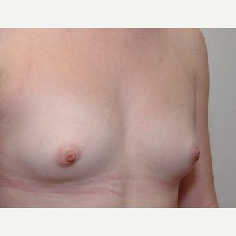 Breast Augmentation before 3108844