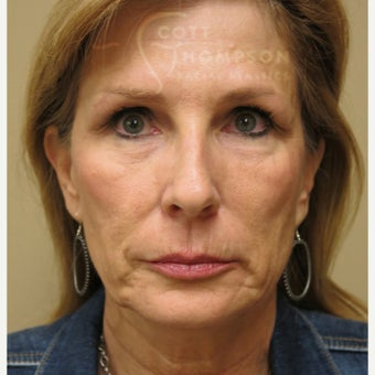 45-54 year old woman treated with MACS Facelift 1947375