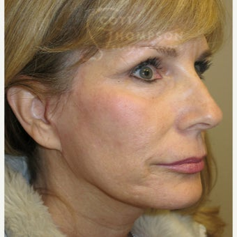 45-54 year old woman treated with MACS Facelift after 1947375