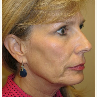 45-54 year old woman treated with MACS Facelift before 1947375