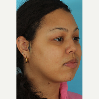 25-34 year old woman treated with Rhinoplasty before 3628886