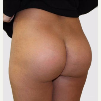 25-34 year old woman treated with Butt Implants after 2067048