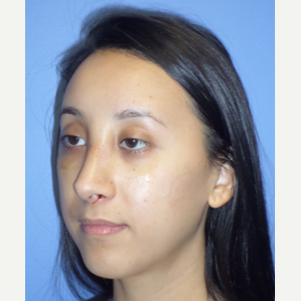 25-34 year old woman treated with Rhinoplasty after 3764667